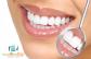 Ezzel az ajánlattal most igazán elragadó és megnyerő lesz a mosolyod, ugyanis egy komplex fogászati kezelésen vehetsz részt LED lámpás Peroxidmentes fogfehérítéssel! Csak vásárolj kupont most verhetetlen áron 12.990 Ft-ért és már foglalhatod is az időpontot a Hollán Dentál Fogászatra (XIII. kerület)