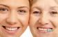 Szeretnéd tükörbe nézve a fiatalabb énedet viszont látni? A HIFU Ultra Therapy most lehetővé teszi számodra, hogy az általad választott területen megfiatalodj! Válaszd most ezt a hihetetlenül remek ajánlatot, hiszen ha 2 db kupont vásárolsz, a 3. kezelést ajándékba kapod, vagyis mind a három területet kezeltetheted!