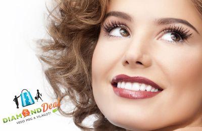 Hollywoodi Mosoly elérhető áron! Komplex fogászati kezelés most 4.890 Ft-ért!