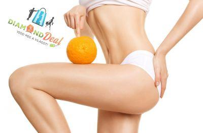 Narancsbőr eltüntető kézi masszázs 90 percben, vákuumos és ultrahangos kezelésekkel