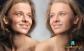 HIFU UltraLift mosolyránc és szájkörnyéki kezelés a Kontúr Alakformáló Központban!