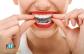 Láthatatlan fogszabályzás az egyenes fogakért, kivehető műanyag sínekkel + AJÁNDÉK fogkőeltávolítás!