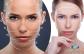 Szemkörnyék-homlok ránctalanítás HIFU kezeléssel - űzd el a ráncokat és gondokat arcodról!